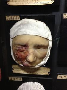 Saint Louis wax of tumour